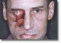 Gesichtsepithese und Obturatorprothese