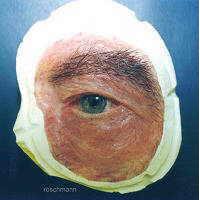 Augenepithese (Orbitaepithese)