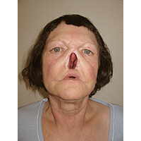 Nasenprothese