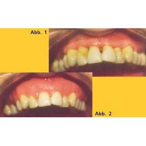 Zahnfleischepithese