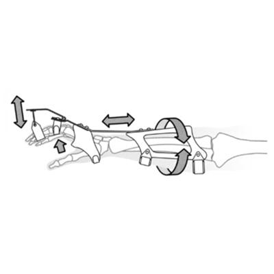 Modular-System für Handorthesen Typ 2.1