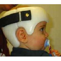 Helmtherapie bei Schädeldeformität