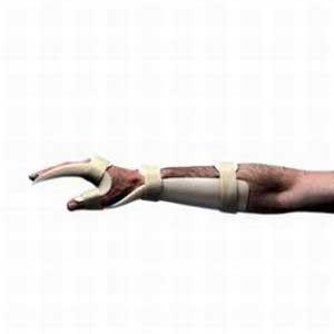 Handgelenkorthese BASKO , Halbschalenmodell
