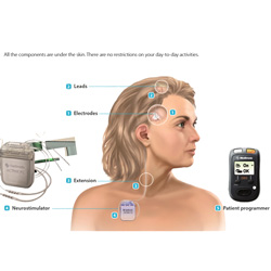 Neurostimulator Activa PC (Komponenten)