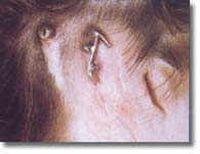 Ohrprothese und Hörgerät