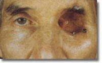 Augenepithese